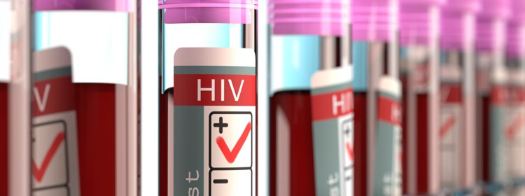Signs-and-Symptoms-of-HIV-feat