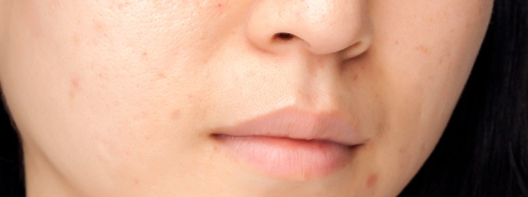 Acne-Scars-solution