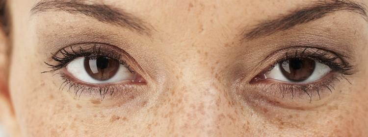 melasma-skin-pigmentation-feat