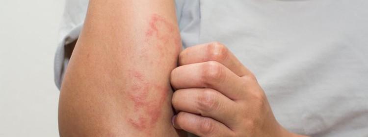 Treating-Psoriasis