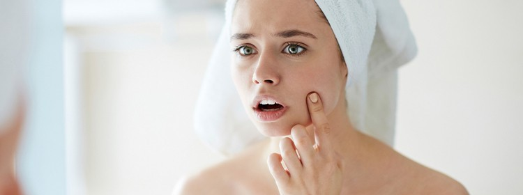 Prevent-Acne-Breakouts